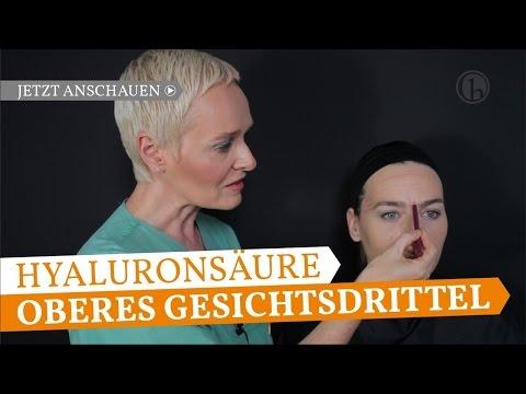 Faltenbehandlung mit Hyaluronsäure-Stirnfalten, Zornesfalte, Browlift Dr. Simone Hellmann Köln