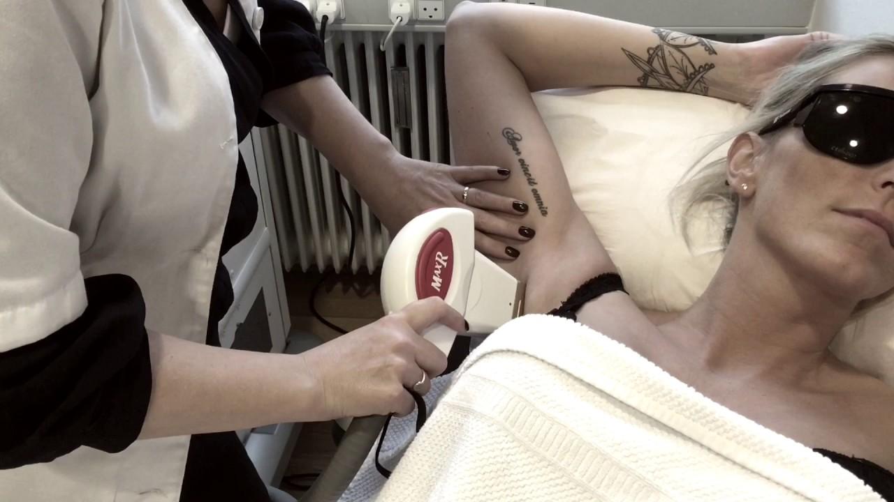 Permanent hårfjerning sønderborg