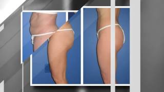 Abdomen Liposuction (Female Results) - Infini Phoenix Liposuction