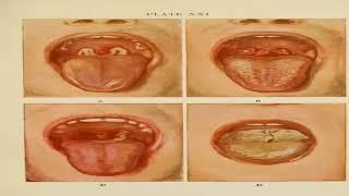 Download Video 028_16TB_Pengobatan Penyakit Difteri MP3 3GP MP4