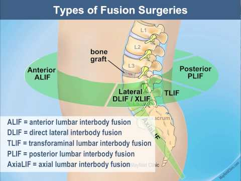 Preparing for Lumbar Spinal Fusion | Mayfield Brain & Spine