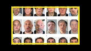 Pourquoi les greffes du visage doivent rester exceptionnelles