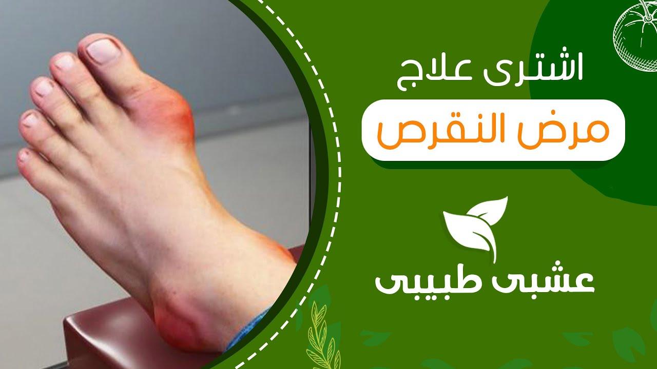 علاج ارتجاع المرئ 10 اعشاب طبيعية لعلاج ارتجاع المرئ وحموضة المعدة Youtube