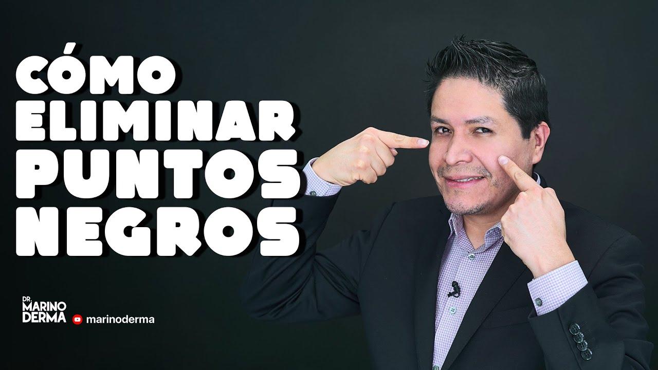 COMO ELIMINAR PUNTOS NEGROS || Dr Marino Dermatologo