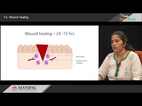 Wound healing- Primary & Secondary