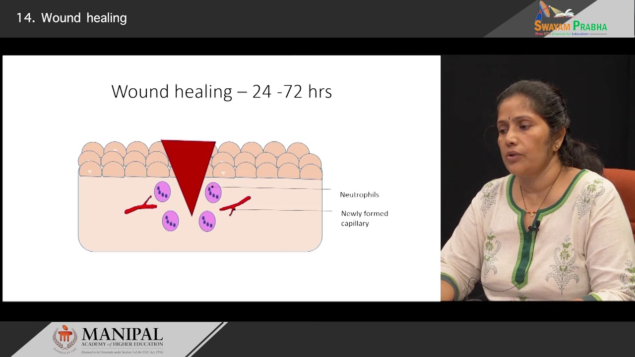 Download Wound healing- Primary & Secondary