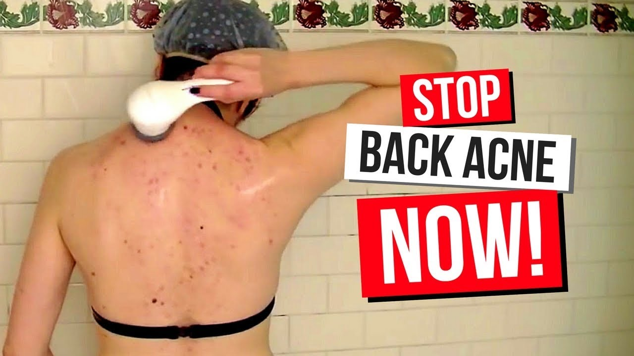 How To Clear Back Acne My Routine Home Remedies Treatment
