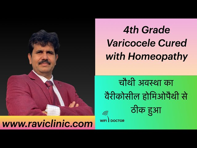 Varicocele It's cause , effect and Homoeopathic Treatment with Real time case