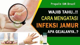 ikancupangindonesia #cupangsakit #ikancupang Cara Menyembuhkan penyakit infeksi jamur pada ikan cup.
