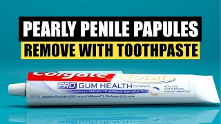 Pearly Penile Papules Removal Toothpaste