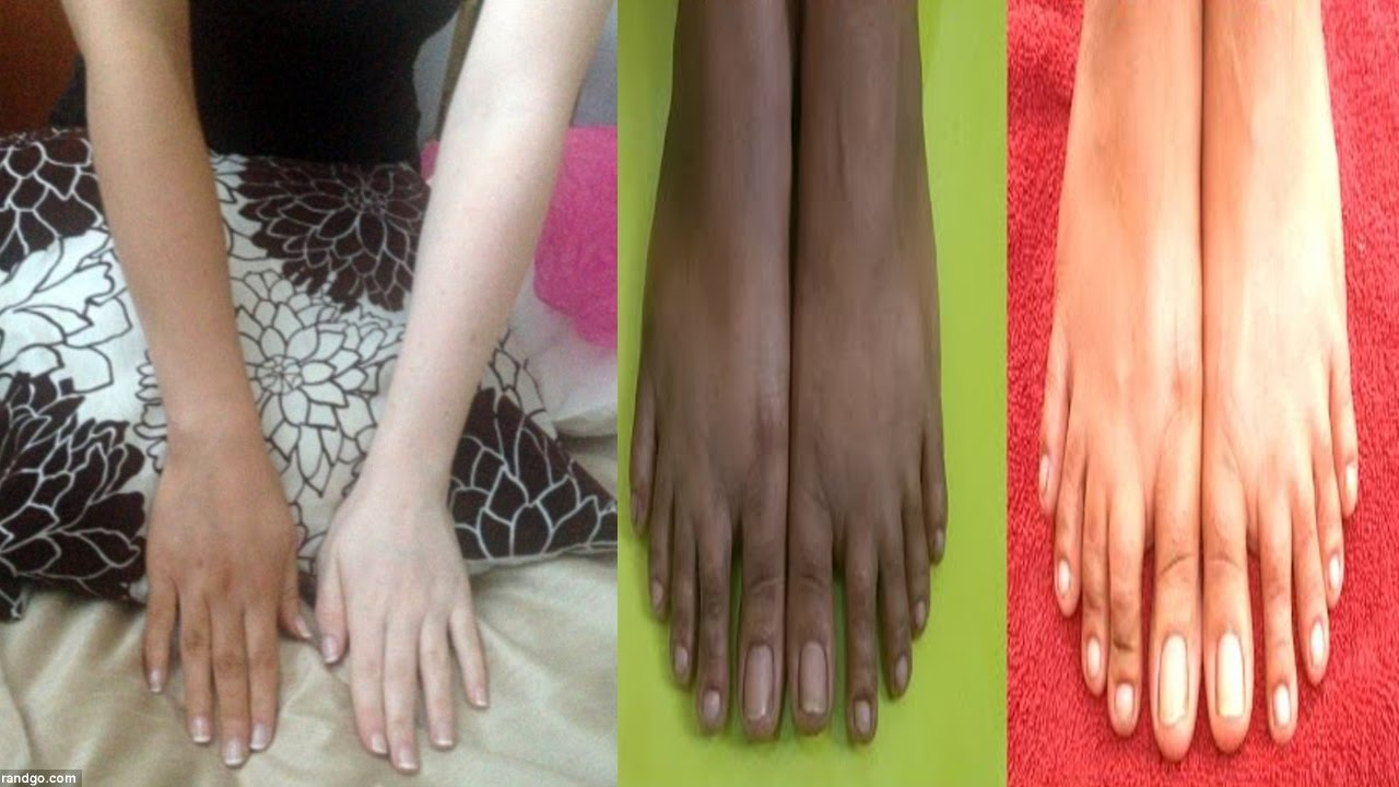 Home Remedies To Whiten Dark Hands And Feet Instantly