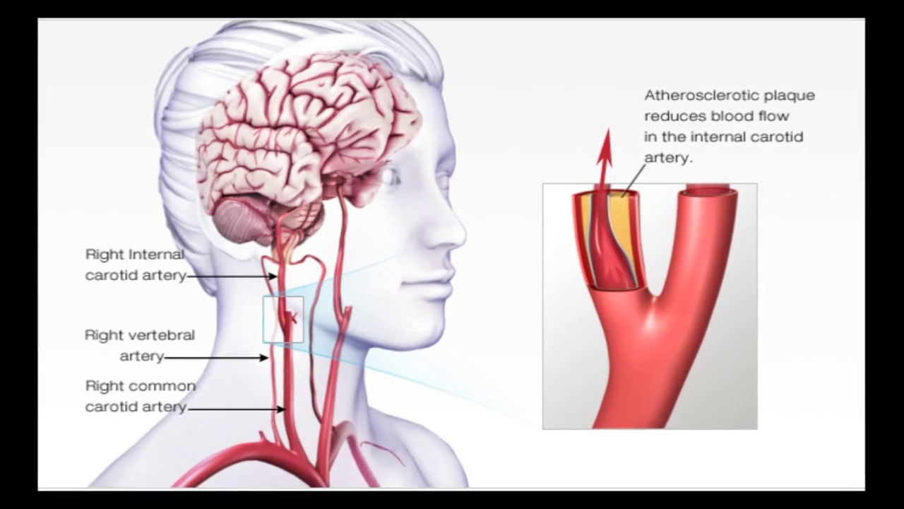 cardiovascular accident or stroke At this time stroke was history of stroke this led to the terms stroke or cerebral vascular accident (cva) stroke is now often referred to as a brain.