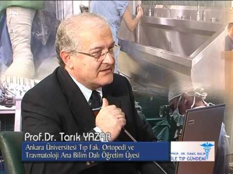 Prof. Dr. Tarık YAZAR, Omurga Eğrilikleri