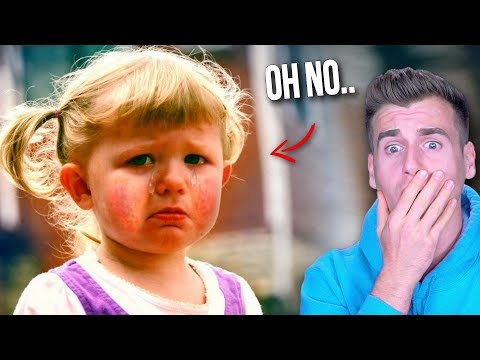MEET THE GIRL WHO'S ALLERGIC TO HER OWN TEARS!