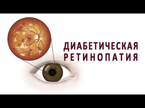 Диабетическая ретинопатия как осложнение сахарного диабета