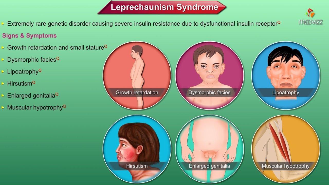 leprechaunism life expectancy