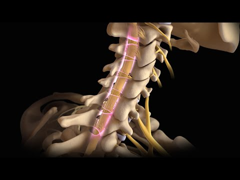 Neck Surgery | Cervical Laminectomy | Nucleus Health