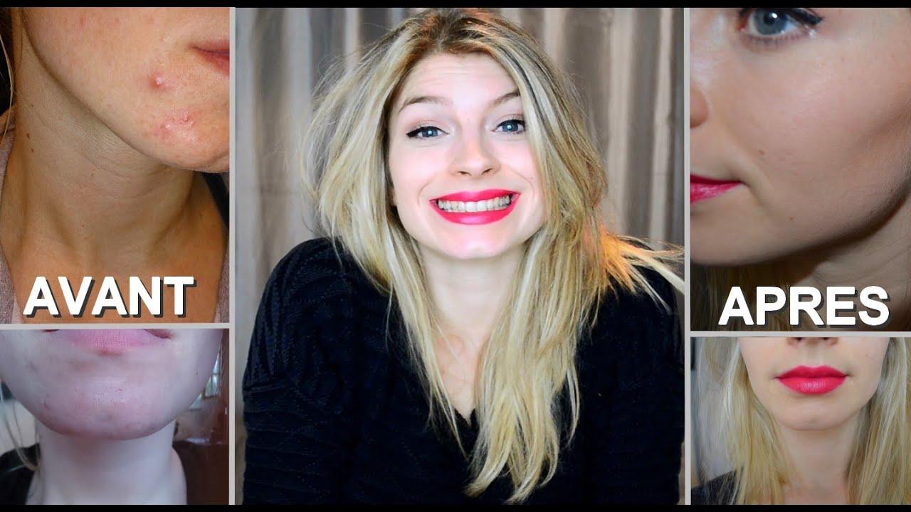 Mon Acné : Fin du traitement l LE BILAN (Photos avant/après)