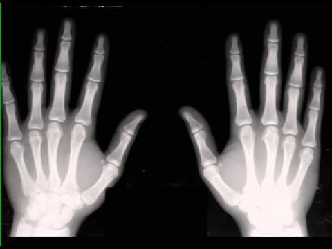 Normal Hands on X ray - YouTube