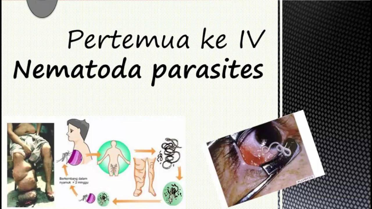 parazitá fertozes ellenszere a helminthiasis kezelési módszerei