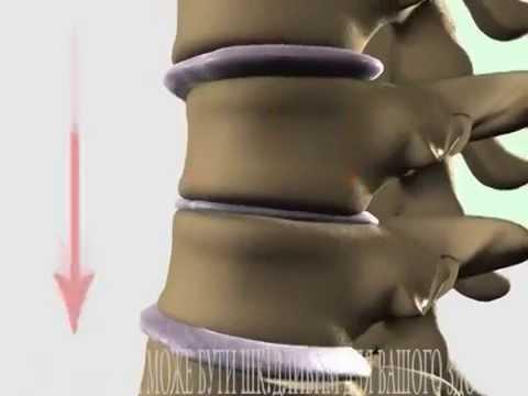 СОЛИ в позвоночнике Лечение - YouTube