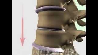СОЛИ в позвоночнике  Лечение(Проблема боли в позвоночнике изнутри. Что происходит с диском? Почему растут соли? http://clinica-starisha.com/bolezni/zabolevani..., 2014-11-17T22:13:23.000Z)