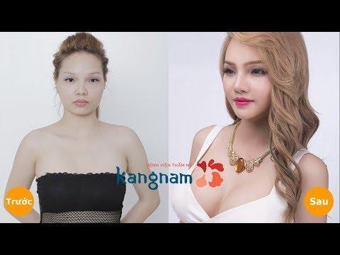 Thẩm Mỹ Viện Kanngam - Thay đổi Chân Dung - Tuyết DJ