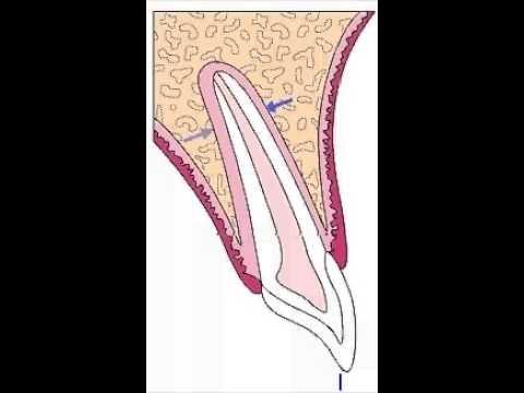 Biomecanica en ortodoncia