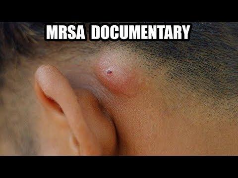Epic MRSA & Staph Infection Remix | What Is MRSA?