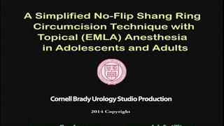 A Simplified No-Flip Shang Ring Circumcision Technique with Topical (EMLA) Anesthesia