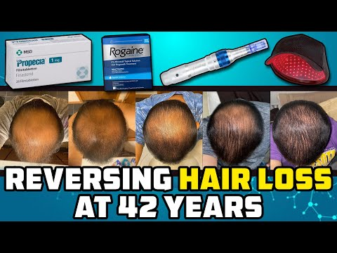 he-let-himself-go-bald,-then-at-42-he-tried-reversing-it-and-this-is-what-happened...