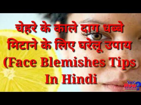 च हर क क ल द ग धब ब म ट न क ल ए घर ल उप य Face Blemishes Tips In Hindi
