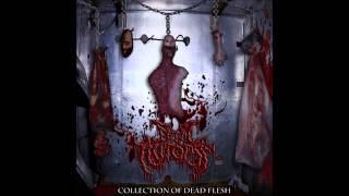Fetal Autopsy - Collection of Dead Flesh (Full Album)