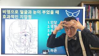 비염으로 생긴 얼굴 붓기 빼는 지압 Acupressure to remove facial swelling caused by rhinitis
