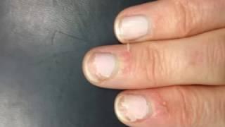 видео Трескается кожа на пальцах рук около ногтей