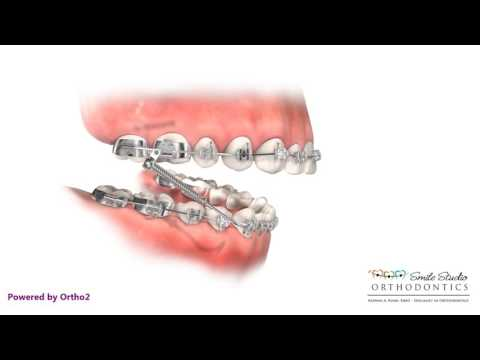 Headgear VS Forsus - Orthodontic Treatment