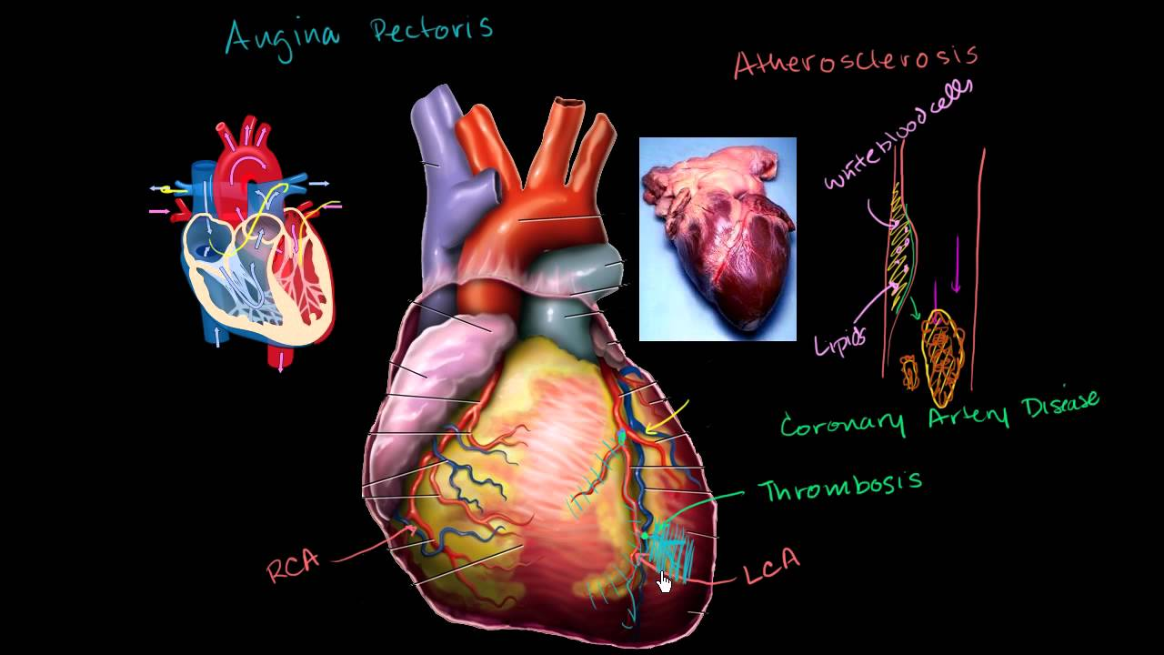 Heart disease and heart attacks youtube heart disease and heart attacks ccuart Gallery