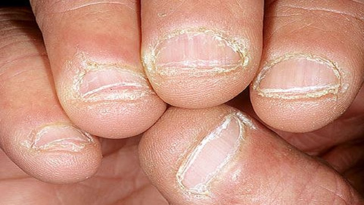 How to Treat Peeling Nails: Best Nail Treatment For Peeling Nails ...