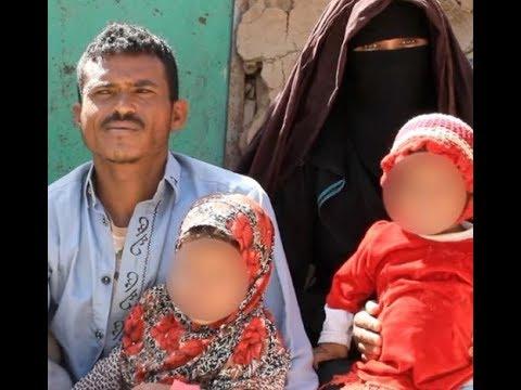 حرب اليمن: -اضطررت لتزويج بناتي لإنقاذ عائلتي من الجوع-