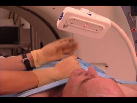 New Device for Lung  Biopsy-Mayo Clinic
