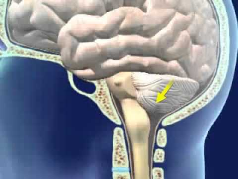 brainstem herniation