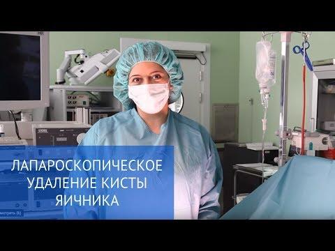 Как проходит лапароскопия кисты