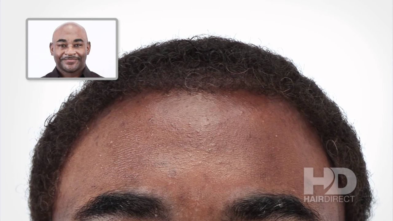 African American Male Hair Replacement System - Hair ...