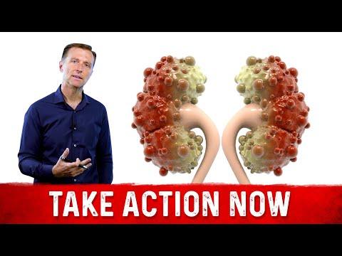 7 Early Signs of Kidney Disease