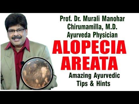 Alopecia Areata | Ayurvedic Remedies | Prof. Dr. Murali Manohar Chirumamilla, M.D. (Ayurveda)