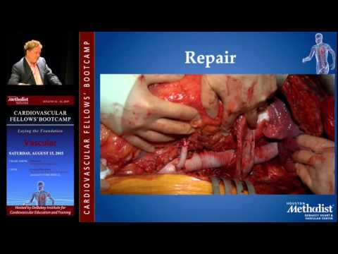 Open Surgical Management of Thoracic and TAAA (Alan B. Lumsden, MD)