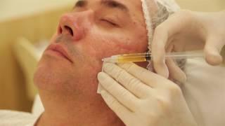 видео Плазмотерапия или клеточное омоложение