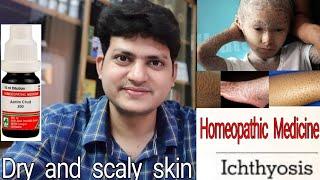 Ichthyosis ! रूखी सूखी फटी हुई त्वचा ! Homeopathic medicine for Ichthyosis ? explain !