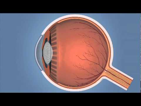 How the Eye Works and Glaucoma