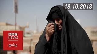 The painful legacy of the Iran-Iraq war | BBC Tamil Latest News | பிபிசி தமிழ் செய்தியறிக்கை |